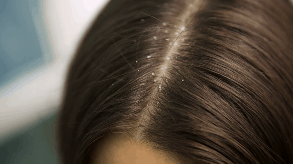 Keeping Your Hair Dandruff-free