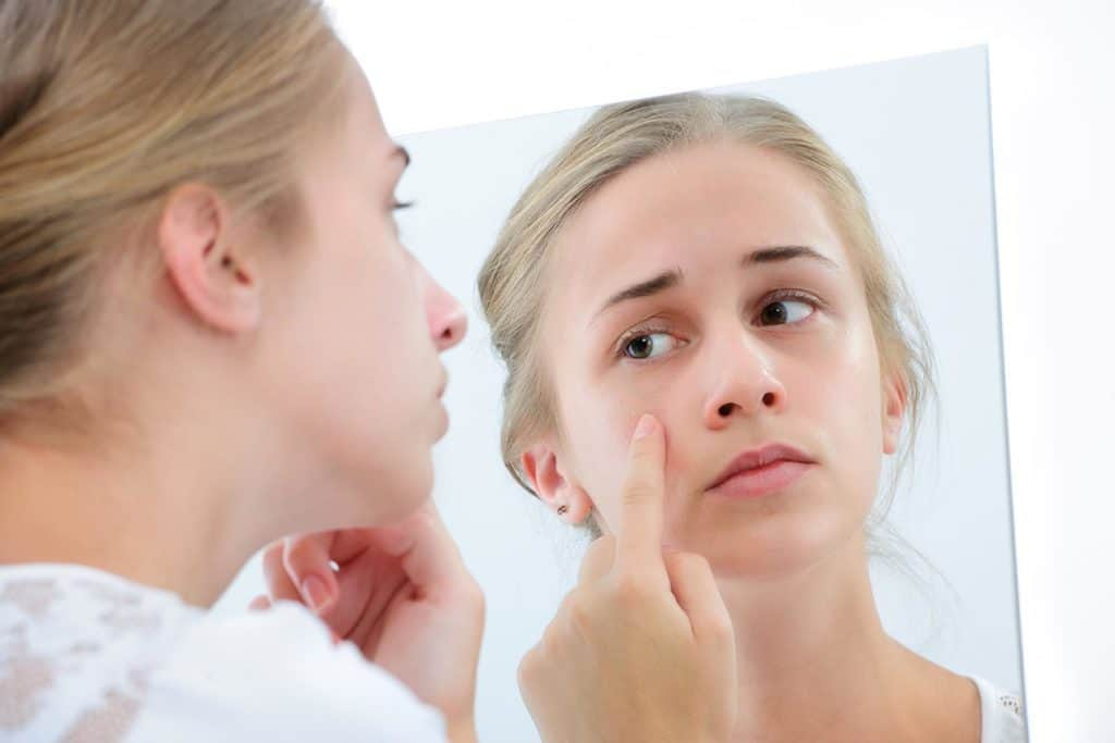 Reducing the Presence of Acne